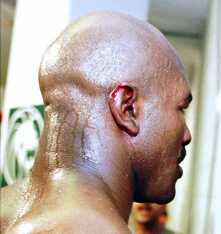 worst injuries in boxing